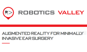 Robotics Valley : Augmented Reality for Minimally Invasive Ear Surgery